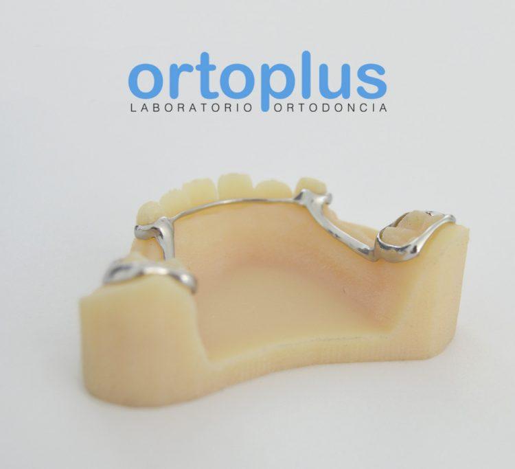 Ortoplus - Sinterizado de Metal