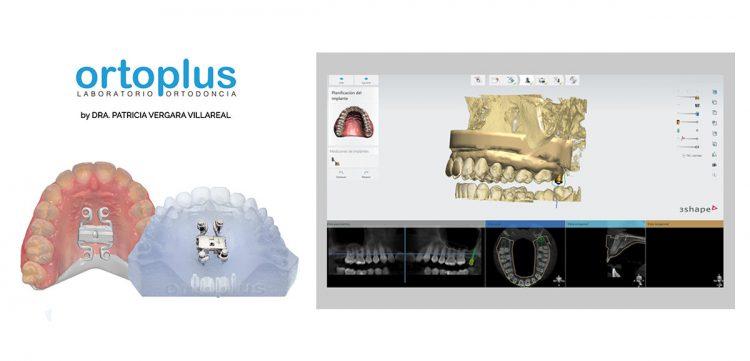 ortoplus-guias-quirurgicas-disyuntor-patricia-vergara