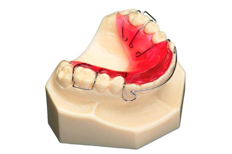 Mandibular advance plate