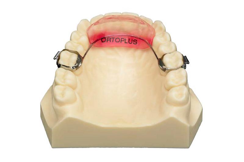 Rampa de avance mandibular fijo y removible