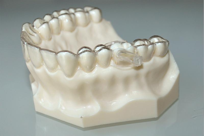 rotar molares