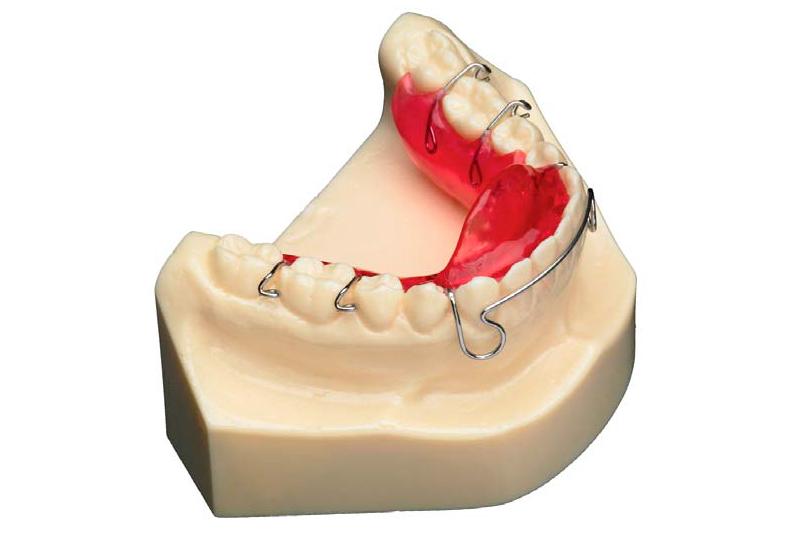 Placa con avance mandibular inferior