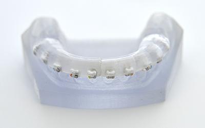 Ortodoncia lingual digital