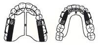 Twin Block Clase II